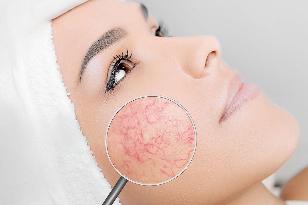 Haut mit Neigung zu Couperose – Charakteristik, Pflege, Kosmetika