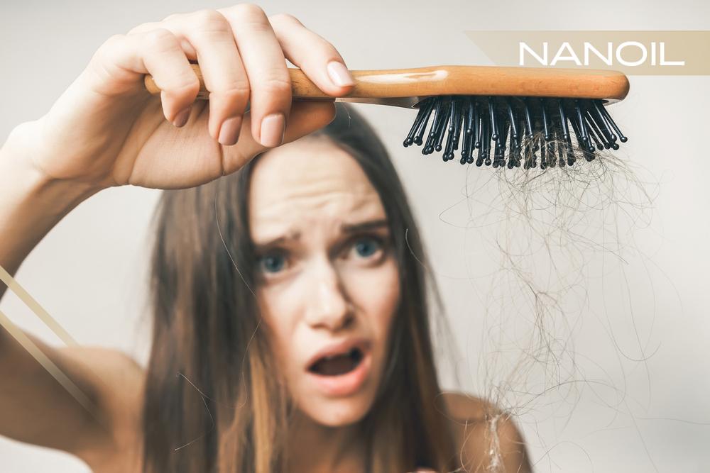 Haarverlust Ursachen Wie Können Sie Dem Ausfall Der Haare