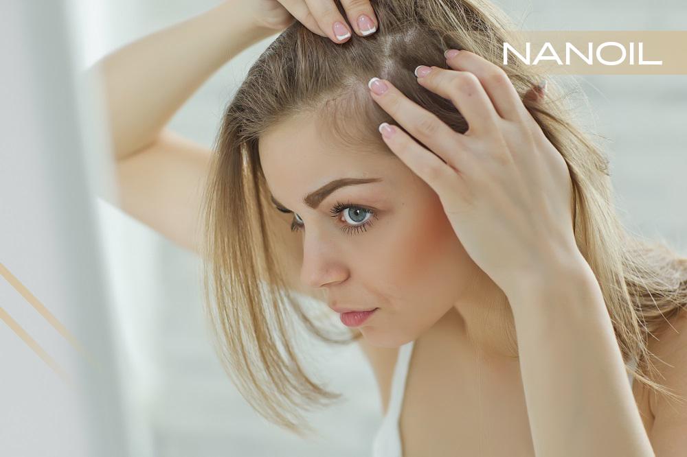 Alles Klar Mit Dem Haar 6 Teil Pflege Der Schuppigen Haare